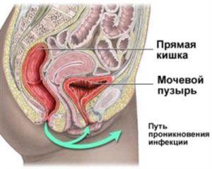 Характеристика цистита у детей. Первые признаки и способы лечения болезни