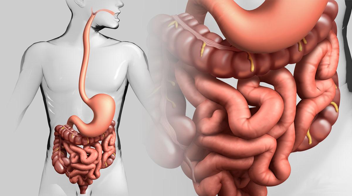 Большое скопление гельминтов в кишечнике