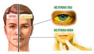 Как можно заразиться вирусом гепатита А. Основные симптомы, диагностика и способы лечения болезни