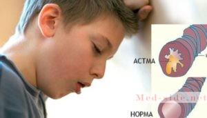 Алгоритм действий при астматическом статусе: как купировать длительный приступ бронхиальной астмы