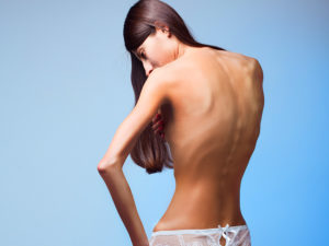 Необоснованно сильное похудение