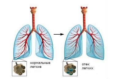 Очаговая пневмония: симптомы и лечение при правосторонней ...