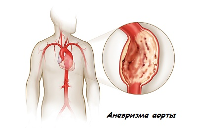Аневризме аорты