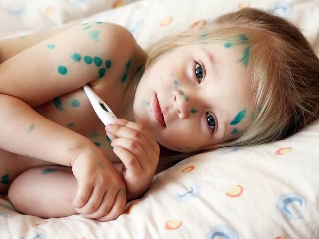 Сколько дней держится температура при ветрянке у детей?