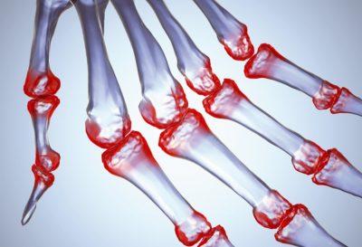 нИнфекции суставов и костей