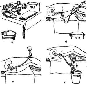 Правила проведения клизмы у детей. Алгоритм безопасного очищения кишечника