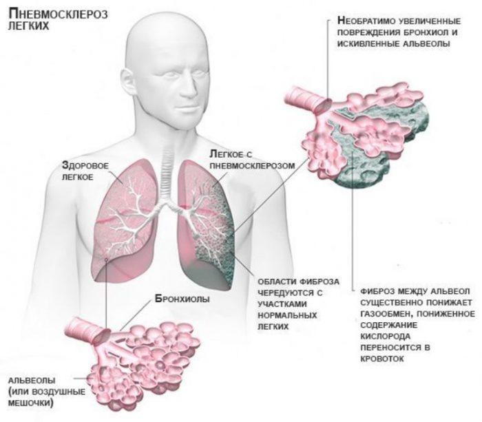 Пневмосклероз аорты легких что это такое