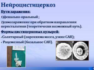 Нейроцистицеркоз