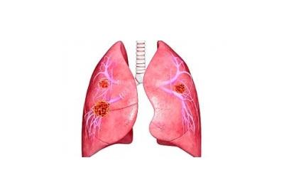 Злокачественные опухоли