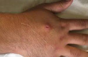 На месте укуса насекомого развивается воспалительная реакция