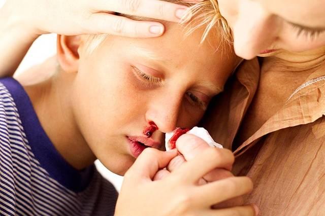 Почему идет кровь из носа у подростка?