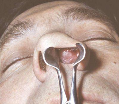 Опухоль в носу