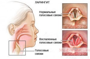 Причина снижения голосовых функций. Хрипота, боль в горле основные признаки ларингита