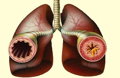 bronhospazm