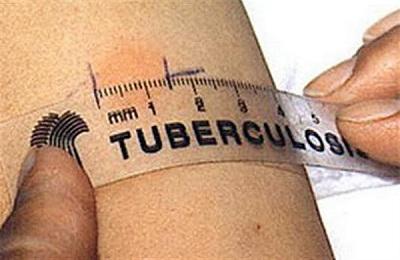 Измерение укола