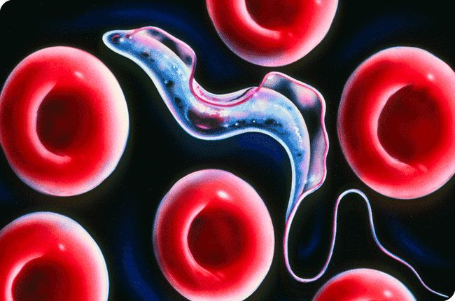 регионарной лимфаденопатией