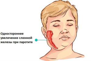Паротит у маленьких детей. Какие органы поражает инфекция, основные симптомы свинки