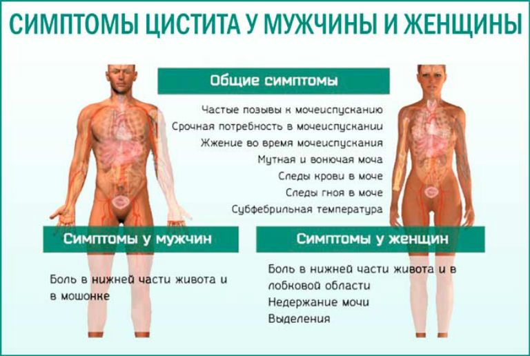 цистит у женщин вызванный простатитом у мужчин