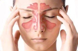 Причины возникновения и способы быстрого лечения ринита и синусита