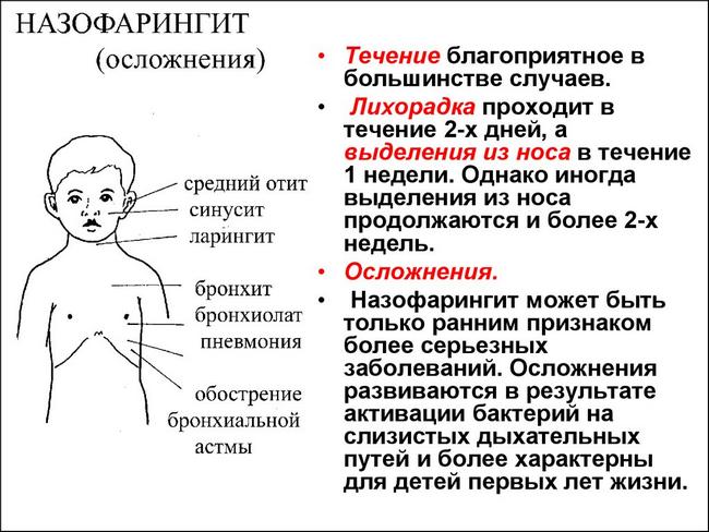 Назофарингит