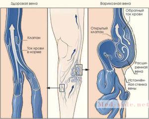 Как заподозрить хроническую венозную недостаточность, эффективные методики лечения