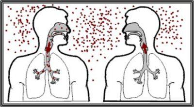 способы заражения туберкулезом