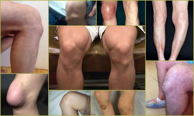 Болезнь коленного сустава (Шляттера) у подростка