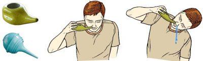 Методы промывания носа