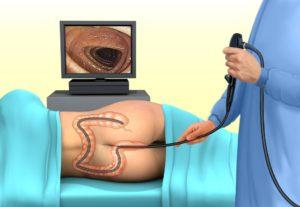 Осмотр кишечника
