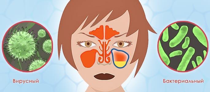 Вирусный и бактериальный синусит