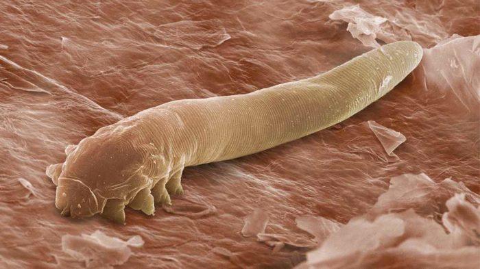 Подкожные паразиты