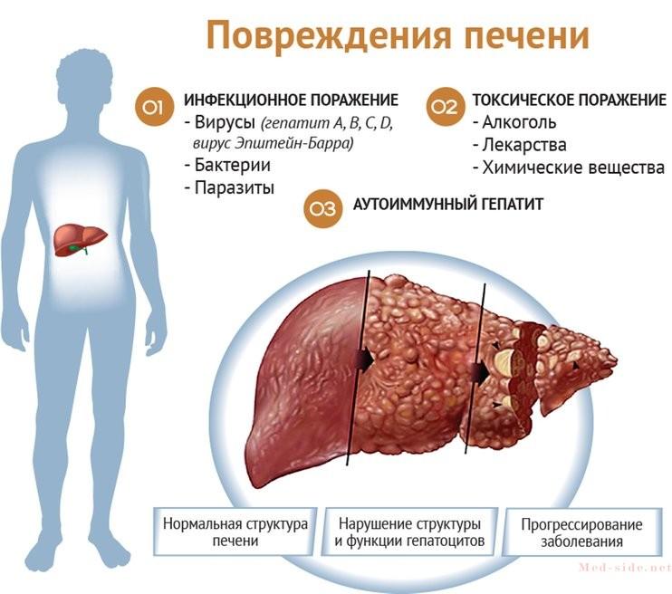Часто задаваемые вопросы врачу о вирусном гепатите. Краткие ответы с разъяснениями