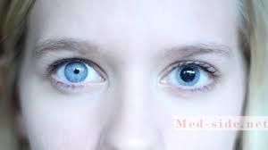 Ситуации, когда появляется анизокория. Насколько страшен симптом, оценка состояния пациента