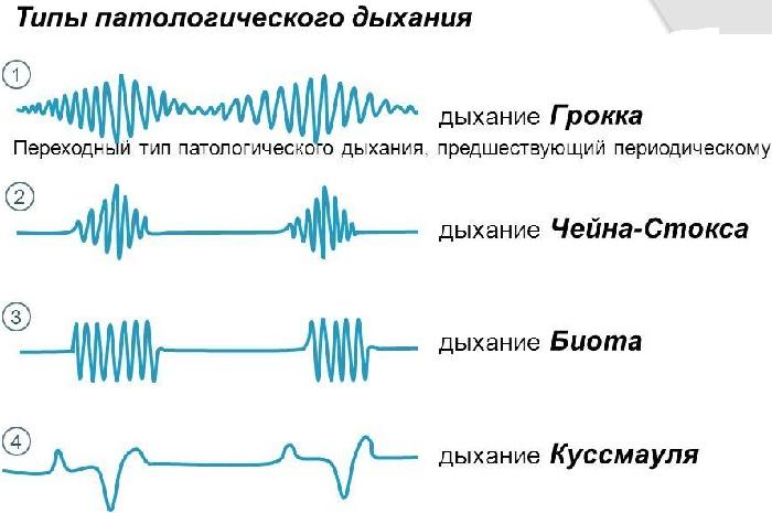 Типы дыхание