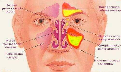 Постоянный отек слизистой носа