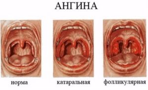 Необходимость лечения ангины антибиотиками. Профилактика поражения сердца