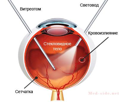 Состояния при которых развивается кровоизлияние в склеру гемофтальм