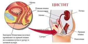 Быстрое лечение цистита антибиотиками у взрослых и профилактика осложнений на почки