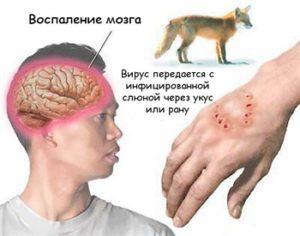В каких случаях возникает бешенство после укуса животных. Первая помощь и прививки