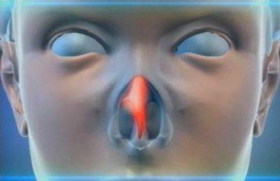 Искривление носа