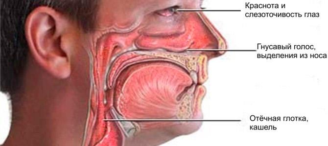 Симптомы вирусного ринита