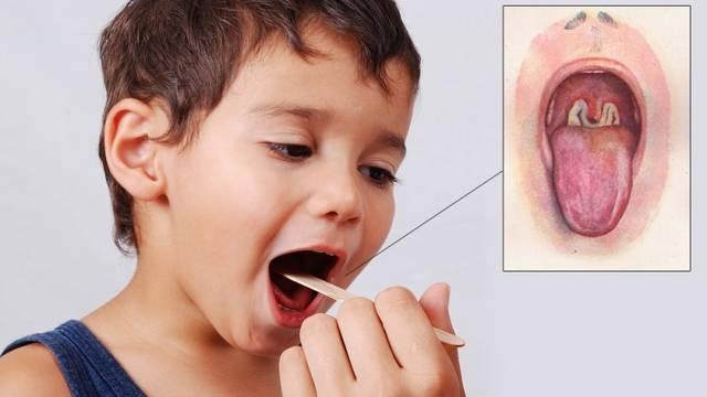 Советы Комаровского красное горло у ребенка, чем лечить?