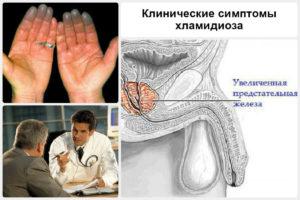 Признаки паразита у мужчин