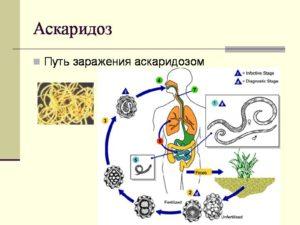 Аскаридоз