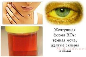 Краткий чек-лист по симптомам при болезни Боткина (гепатита А) у детей и подростков