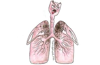 Туберкулез