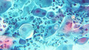 Бактерии Chlamydia trachomatis