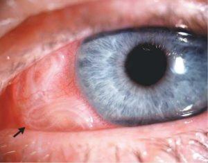 Глазная форма патологии