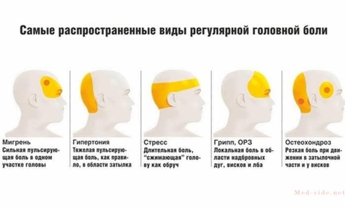 Появление пульсирующей боли в голове признак изменения давления!