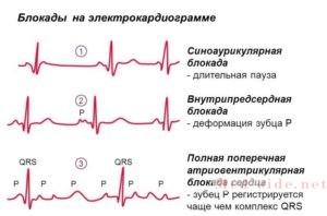 Детальный разбор блокад сердца. возможности диагностика на ЭКГ и показания к постановке стимулятора